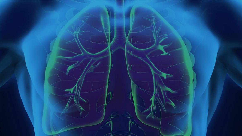 Complications pulmonaires