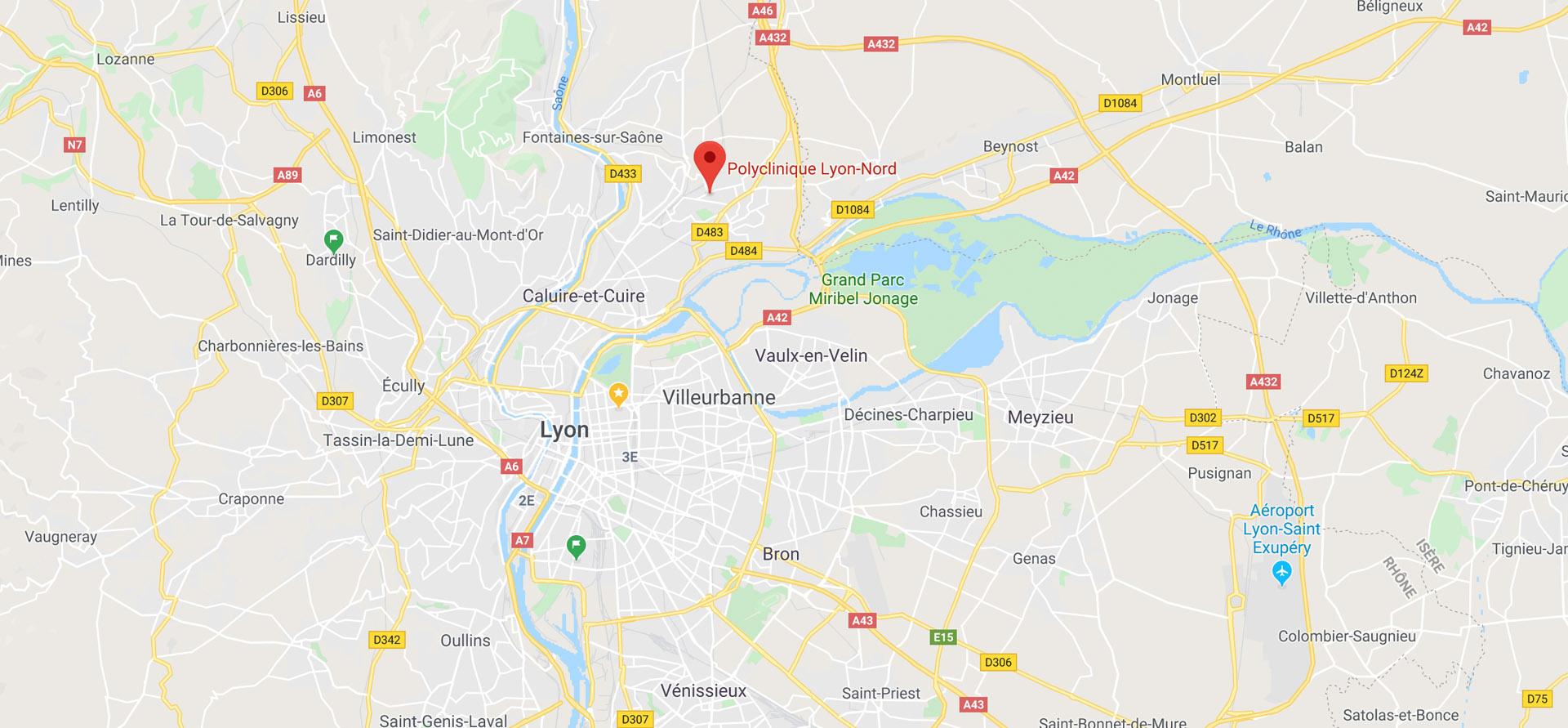 Polyclinique Lyon-Nord 65 rue des Contamines 69140 Rillieux-la-Pape